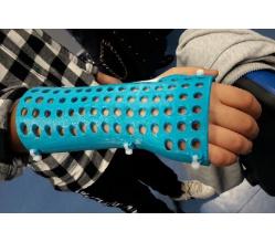 Al posto del gesso un esoscheletro in ABS stampato 3D